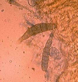 Sporen eines Krankheitserregers im Prüfungs-Präparat